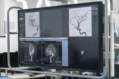 Stroke o derrame cerebral-AngioTeam