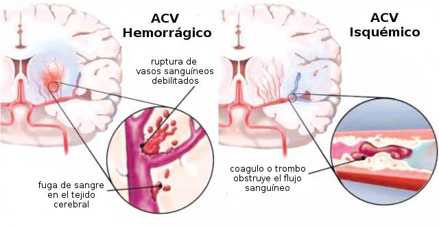 Accidente Cerebrovascular ACV