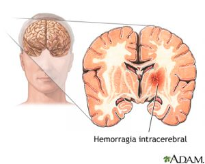 Hemorragia intracerebral-AngioTeam