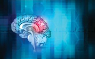 Accidente-Cerebro-Vascular-AngioTeam